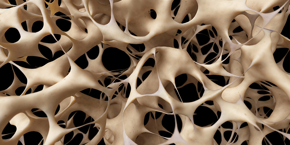 Image from National Osteoporosis Foundation